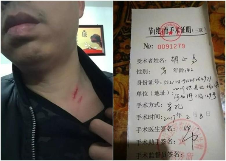 胡男被強制進行結紮手術,又稱曾遭計生小組人員打傷。(網上圖片)